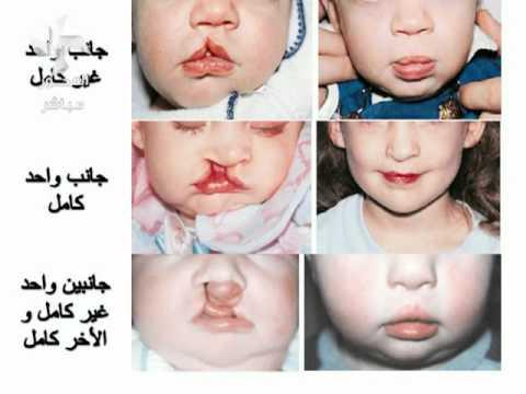 صور ما سبب رائحة الفم الكريهة عند الاطفال , اسباب رائحة الفهم الكريهة