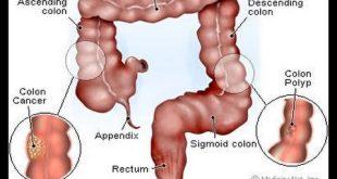 بالصور ماهي اعراض سرطان القولون , الوقاية من السرطان والحفاظ على الجسم منه 16208 2 310x165