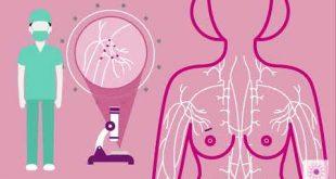 بالصور علاج سرطان الثدي , انواع السرطان والوقاية منه 2298 2 310x165
