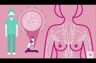 صورة علاج سرطان الثدي , انواع السرطان والوقاية منه
